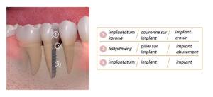 couronne-sur-implant-1